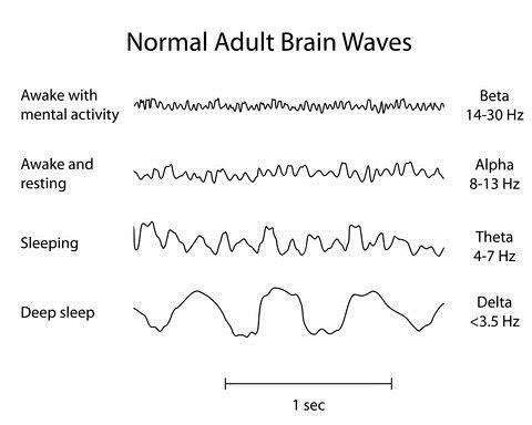 Normal Adult Brain Waves